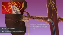 Renal Denervation - Investigational Therapy by Medtronic