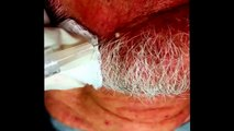 HD DILATED PORE OF WINER AND BLACKHEADS ON THE BACK - New