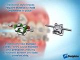 Appareil dentaire - méthode de fonctionnement de l'appareil dentaire