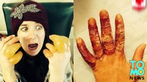 Frostbite photos: Drunk Aussie girl nearly loses her fingers after passing out in Canadian field
