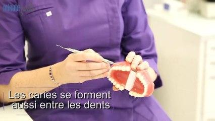 Santé Bien-être : Prévenir et soigner la carie dentaire
