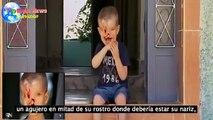 Conoce la historia del niño que nació sin ojos, sin mandibula  y sin nariz