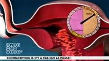 Contraception -- Il N'Y A Pas Que La Pilule!
