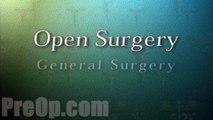 General Open Diagnostic PreOp® Patient Engagement and Education