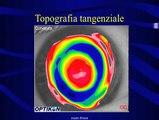 riduzione di aberrazioni corneali con ortocheratologia 21 maggio 2006.mov