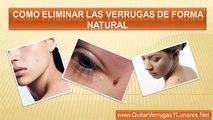 Quitar verrugas y lunares - Tratamiento para verrugas - Verrugas en el cuello