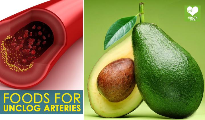 Arteries Unclog Foods   Best Health Food