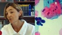 Gebärmutterhalskrebs - Früherkennung sichert Leben