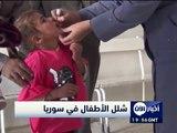 أخبار الآن - 71 حالة من شلل الأطفال في سوريا معظمها في دير الزور