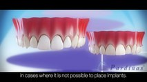 Dental Implants Vs. Dental bridge - Comparision ©