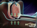 What Causes Snoring and Obstructive Sleep Apnea?
