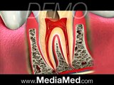 Tooth-Colored Fillings-Composite Fillings-Dental