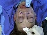 Minimally-Invasive Facial Rejuvenation: Techniques in Aesthetic Plastic Surgery (Elsevier)