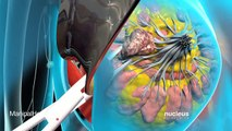 Breast Cancer Surgery | Lumpectomy | Mastectomy | Breast Cancer Care | Manipal Hospitals