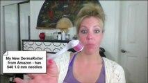 My Dermaroller; How to get rid of acne scars fast; Dermarolling acne scar treatment, Derma rollers