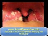 Waterpik tonsil stones  ♣♣♣ How to remove Tonsil Stones ♣♣