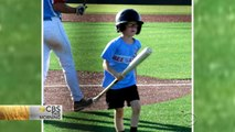 9-year-old dies from head injury after being struck by bat