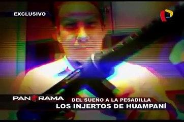 Del sueño a la pesadilla: Los injertos de Huampaní