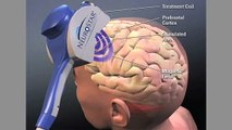 TMS Magnetic Therapy Eases Depression and Pain