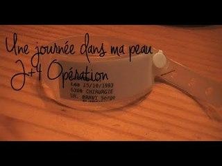 ✦ 1/ Vlog: J+4 après l'opération - LéaChoue