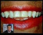 Clínica dental Cuevas Queipo - Estetica y cerámicas