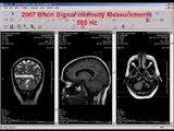 2007 Brain MRI Signal Intensity Measurements