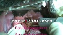 Ronflement du bouledogue et chirurgie au laser. Syndrome brachycéphale du chien.m4v