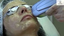 Радиочестотен лифтинг с Elos в Хил клиник. Elos Skin Rejuvenation in Hill clinic - Sofia