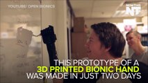 3D Printed Bionic Hand Is Cheaper Than Most Prosthetics