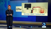 Pioneering device keeps donor's heart beating outside body