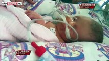 """Mom Gives Birth To Conjoined Twins, """"Baby With Two Faces,"""" After Refusing Abortion"""