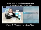 Press On Veneers as Compared with Snap On Smile