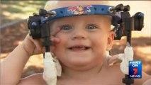 Un bébé miraculé après une rupture des cervicales