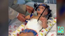 Toddler survives 'internal decapitation' after surgeons reattach his skull to his spine