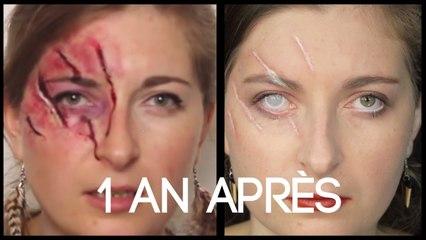 Série Halloween - Cicatrices de griffures