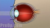 Laser Eye Surgery PRK PreOp® Patient Engagement and Education