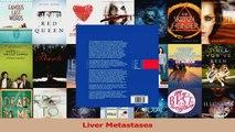 Download  Liver Metastases PDF Online