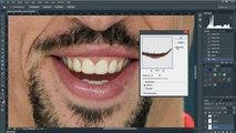 Ribery Kaza Yapmasaydı Nasıl Olurdu    Franck Ribéry - Extreme Makeover Photoshop