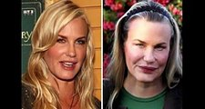 Celebrity Before-And-After Plastic Surgery Disasters
