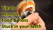 How to Remove Food Stuck in Teeth & Floss Stuck Between Teeth  My Teeth Pain Care
