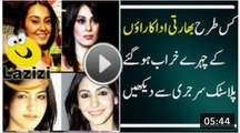 Bollywood Biggest Cosmetic Surgery Disasters