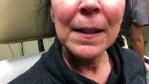 Elle se fait retirer un point noir monstrueux logé dans sa lèvre supérieure