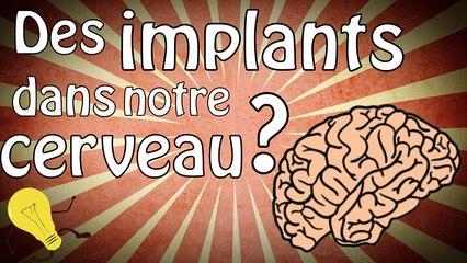 Des implants dans notre cerveau ?