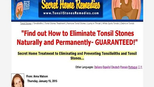 Tonsil Stones Secret Home Remedies