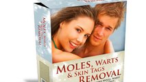 Moles, Warts, and Skin Tags Removal Review | Full Review of  Moles, Warts, and Skin Tags Removal
