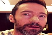Hugh Jackman, intervenido de nuevo de su cáncer de piel