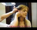 Permanent eyeliner Make-up Vor und Nach dem Tutorial von Erlösen Klinik.