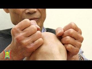 Gout tuổi già: Nguyên nhân và cách phòng trị   HanoiTV