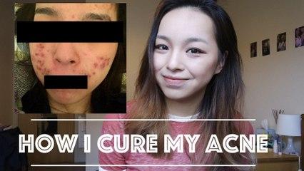 如何擊敗十年不間斷的暗瘡 ✿ How I cure my acne |Christy
