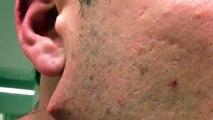 Un homme senlève un poil et découvre que ce nest pas un simple poil